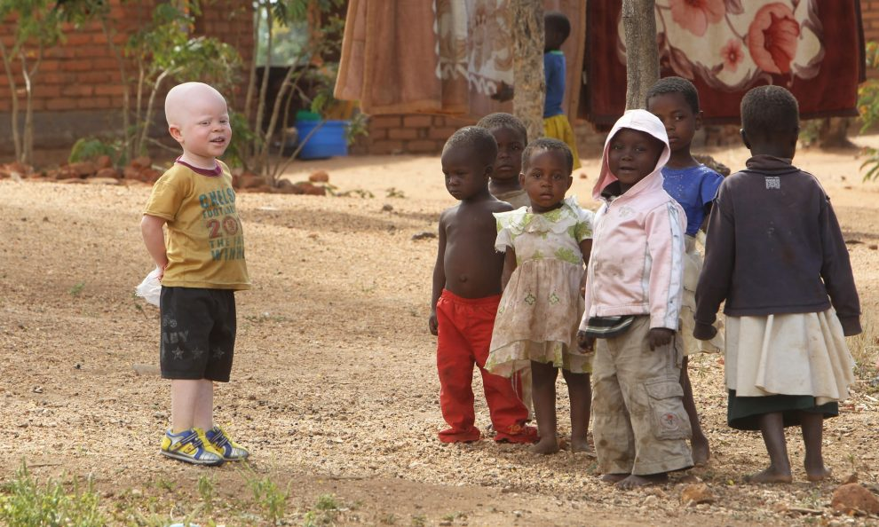 Six human beings with albinism will stand for election to fight stigma in Malawi
