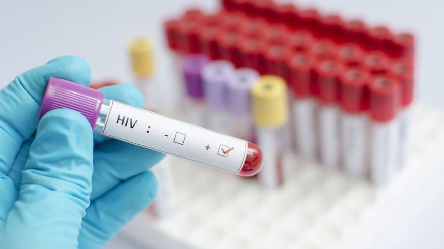 HIV vaccine suggests promise in human trial