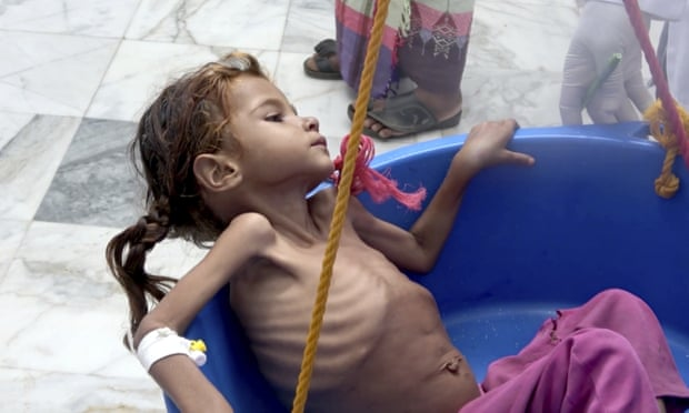'Killing a generation', one million more children at risk from famine in Yemen